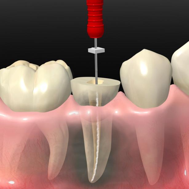 Endodoncia Clinica Dental Tridental Fuenlabrada