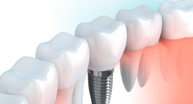 Implantes clinica dental tridental en fuenlabrada