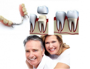 Protesis dental en clinica dental de fuenlabrada